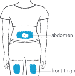 Illustration of two SKYRIZI injection site options: abdomen (around belly button) or front of either thigh