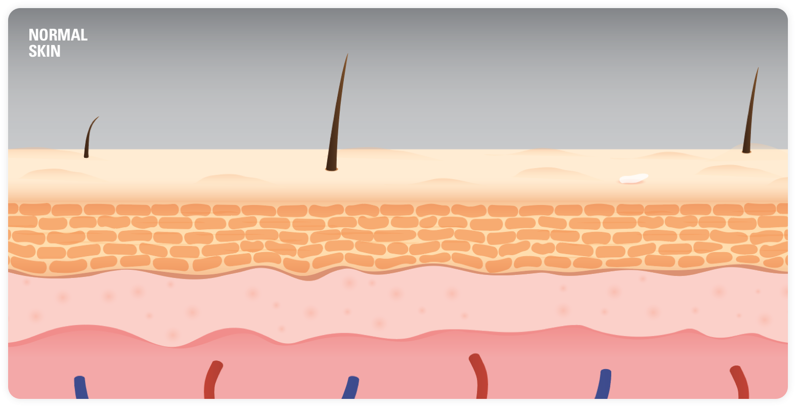 Image of Plaque Psoriasis Skin Layers