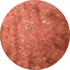 Small Red Plaque Psoriasis