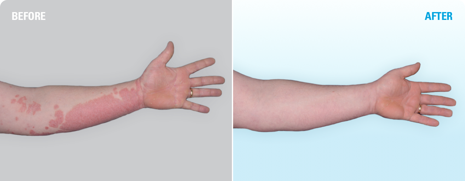 SKYRIZI before and after: one patient's experience with plaque psoriasis clearing on arm