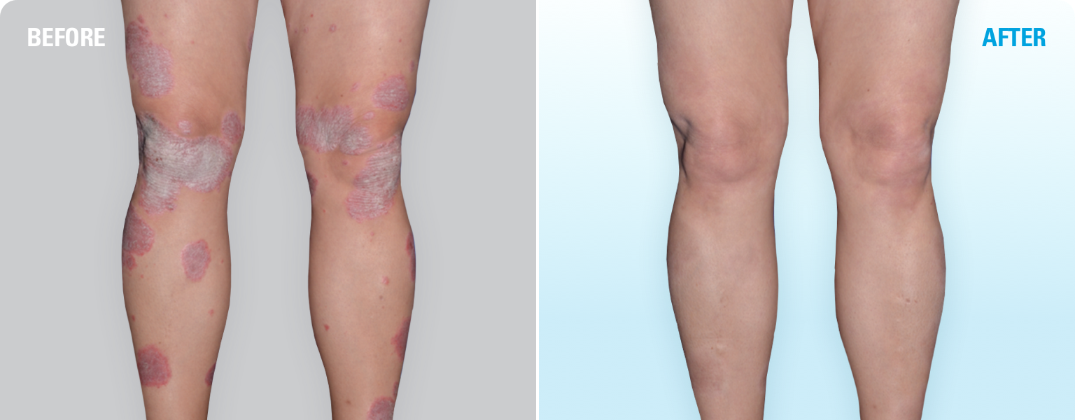SKYRIZI before and after: one patient's experience with plaque psoriasis clearing on legs