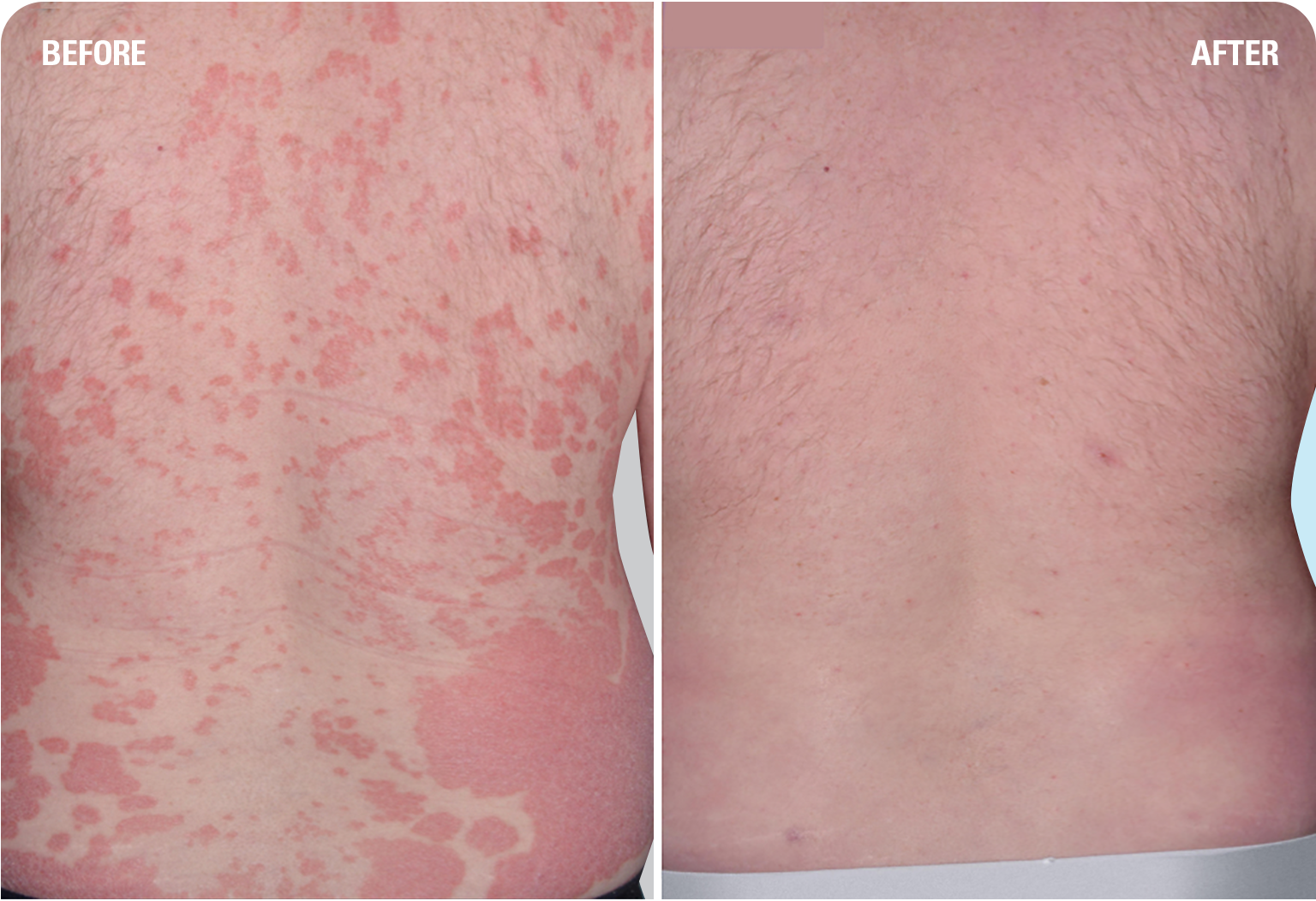 SKYRIZI before and after: one patient's experience with plaque psoriasis clearing back