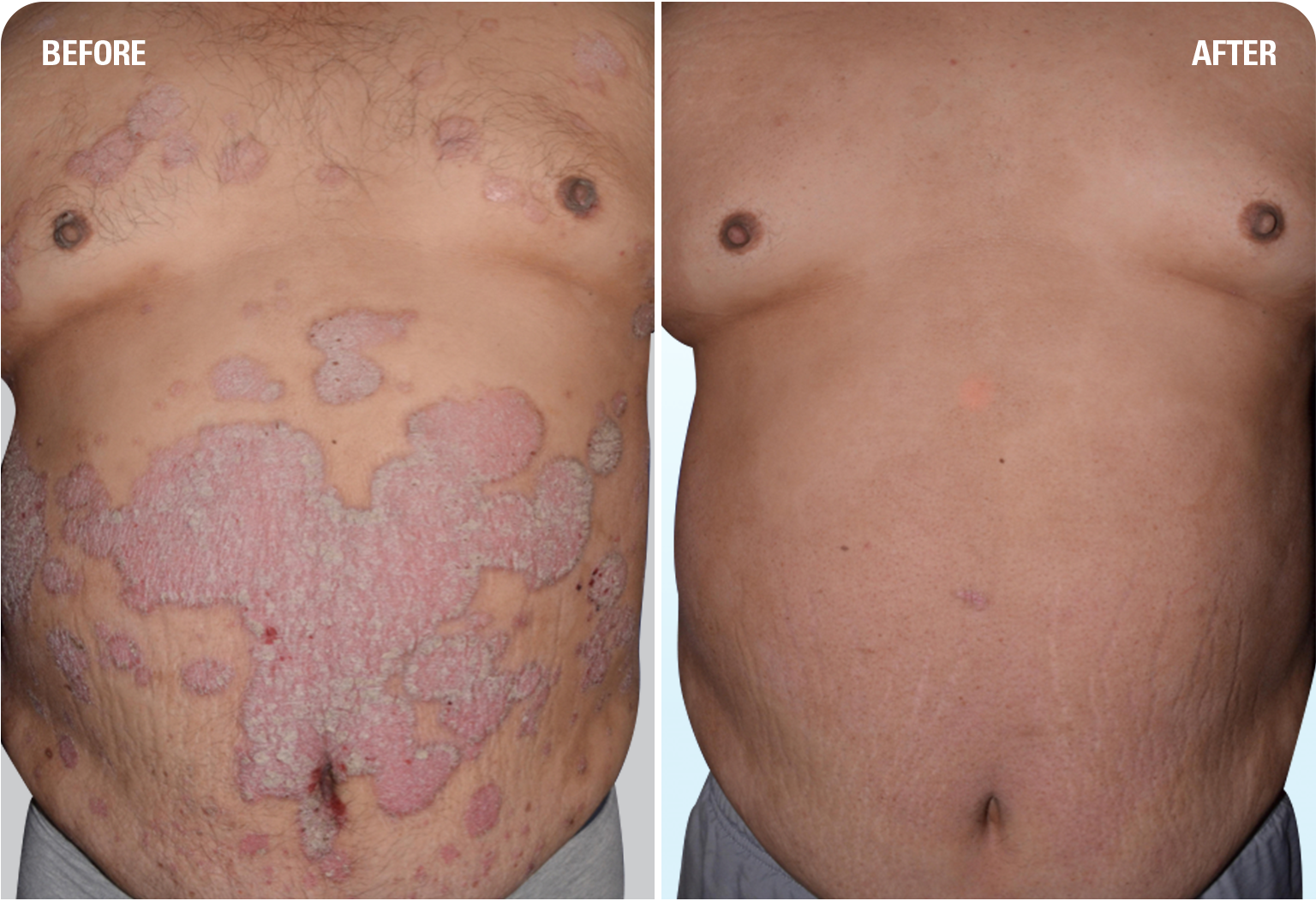 SKYRIZI before and after: one patient's experience with plaque psoriasis clearing on chest