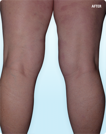 Patient's clearer legs sustained after SKYRIZI treatment *Results may vary