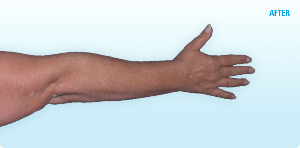 Psoriasis patient's clearer hand, arm, and elbow sustained after SKYRIZI treatment *Results may vary