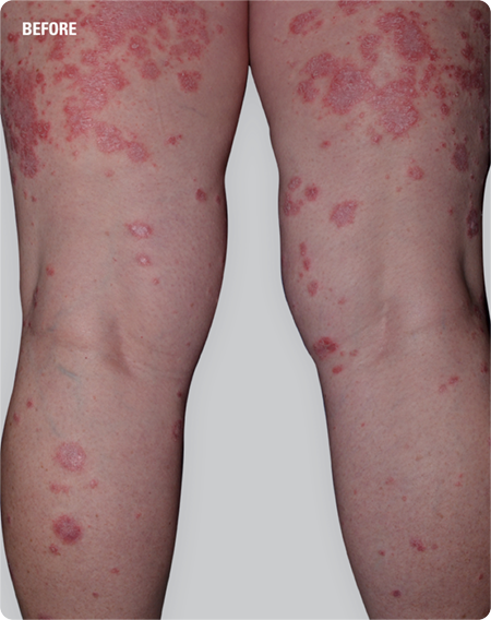 Psoriasis patient's leg and thighs with plaques before SKYRIZI treatment
